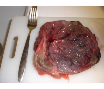 Eating the placenta, it seems, could raise hormone levels enough to ward off ...